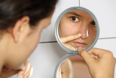 ados et acné, comment prendre soin des peaux jeunes