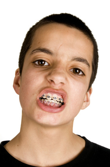 enfants avec appareil dentaire