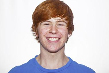 Adolescent souriant avec acne